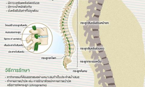 สาเหตุของอาการปวดหลัง : กล้ามเนื้อหลังทำงานไม่ประสานกัน