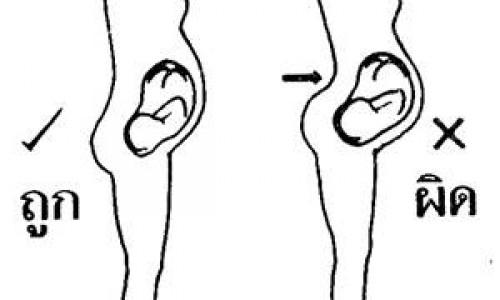 สาเหตุของอาการปวดหลัง : แนวกระดูกสันหลังผิดรูป