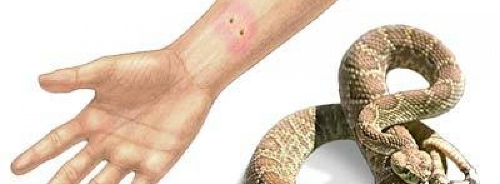 วิธีป้องกันและวิธีรักษาเมื่อถูกงูกัด